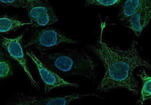Клетки головного мозга после смерти фото
